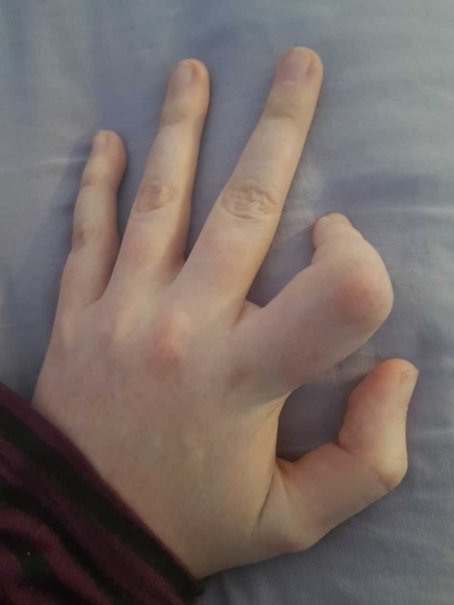 hand with index finger crooked