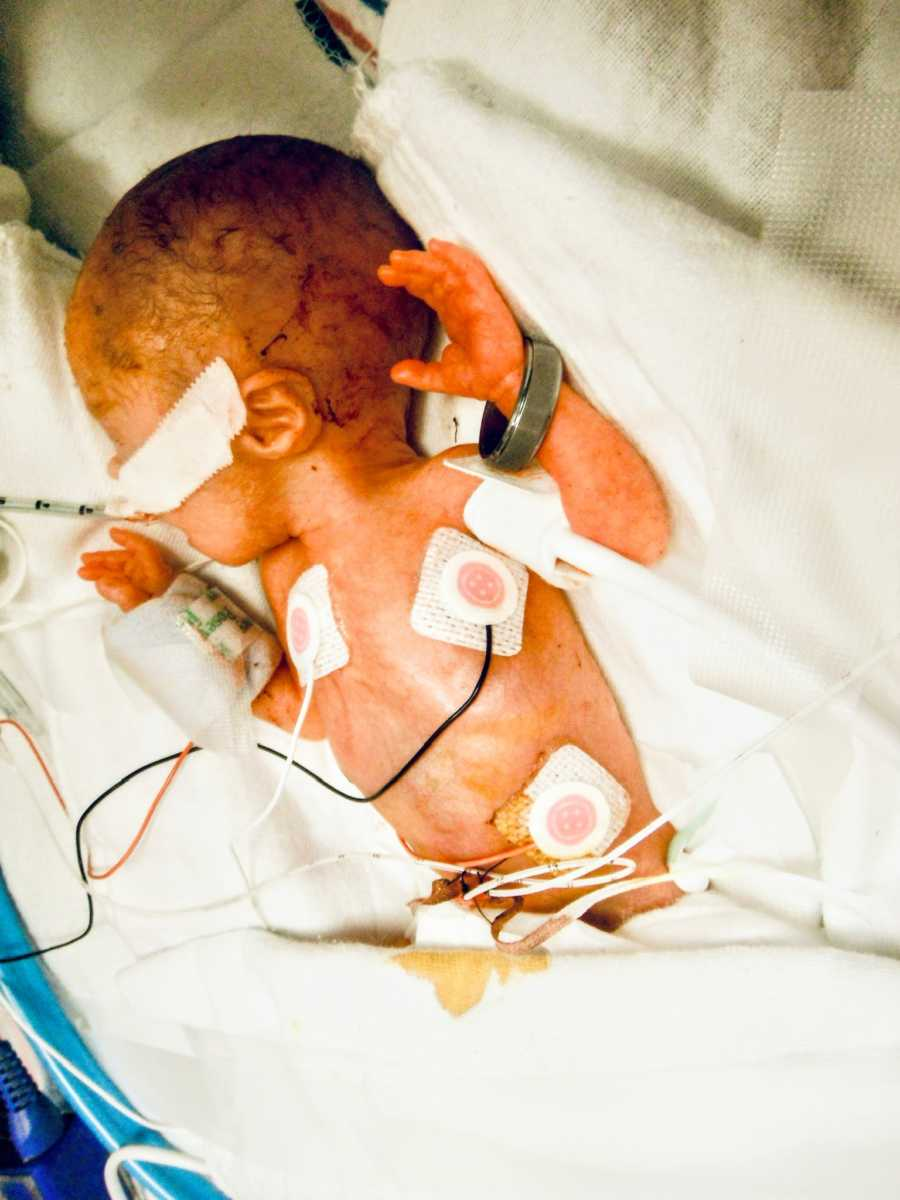 Preemie born at less than 3 pounds fights for her life in the NICU