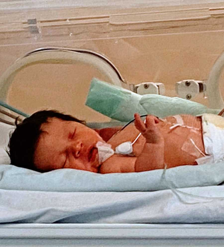 Little boy born with a limb difference sleeps in the NICU ward