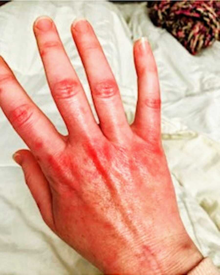 Woman battling unknown illness takes a photo of her stiff, red hand