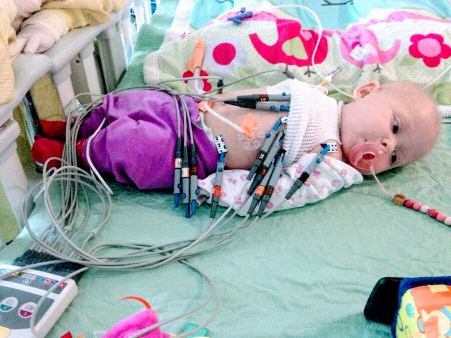 Little girl born with no immune system and multiple rare diseases stays calm while attached to numerous tubes and devices