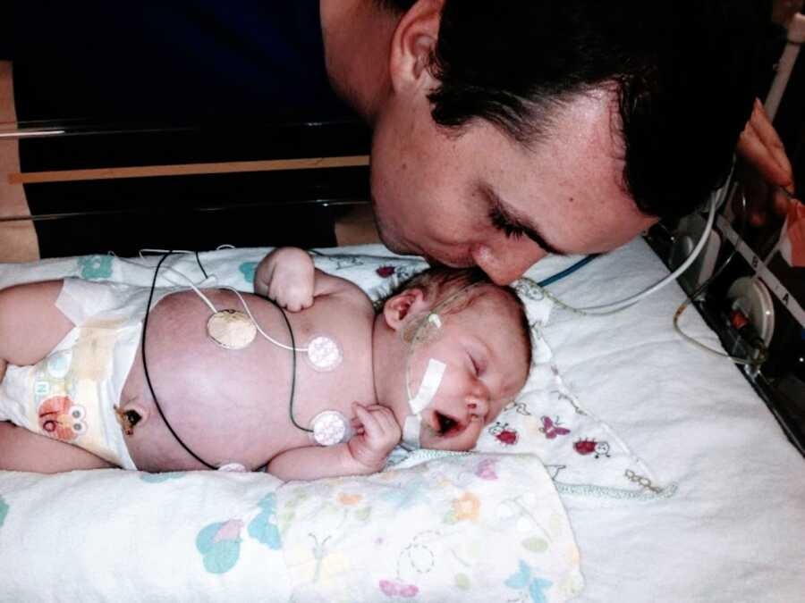 Young new dad kisses his newborn daughter on the head while she's in the NICU