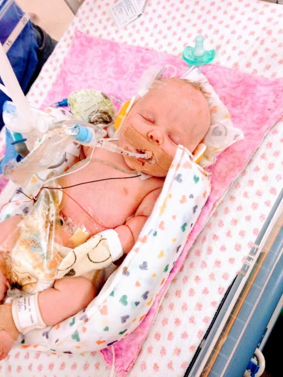 Newborn girl born with dwarfism and multiple rare conditions sleeps on a pink blanket while being attached to various needles and tubes