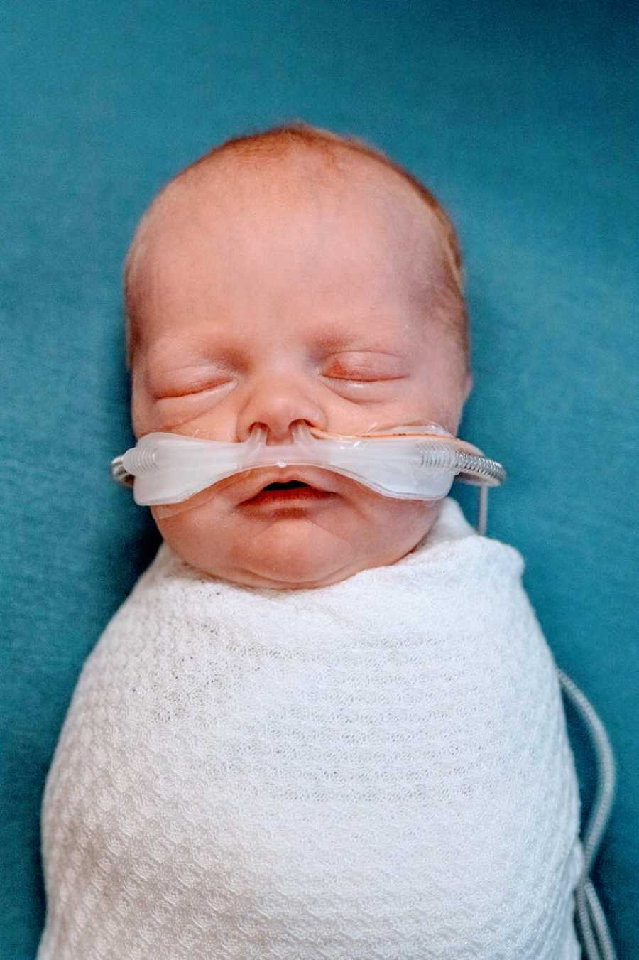 Mom shares photo of newborn baby swaddled in a white blankets with tubes in his nose