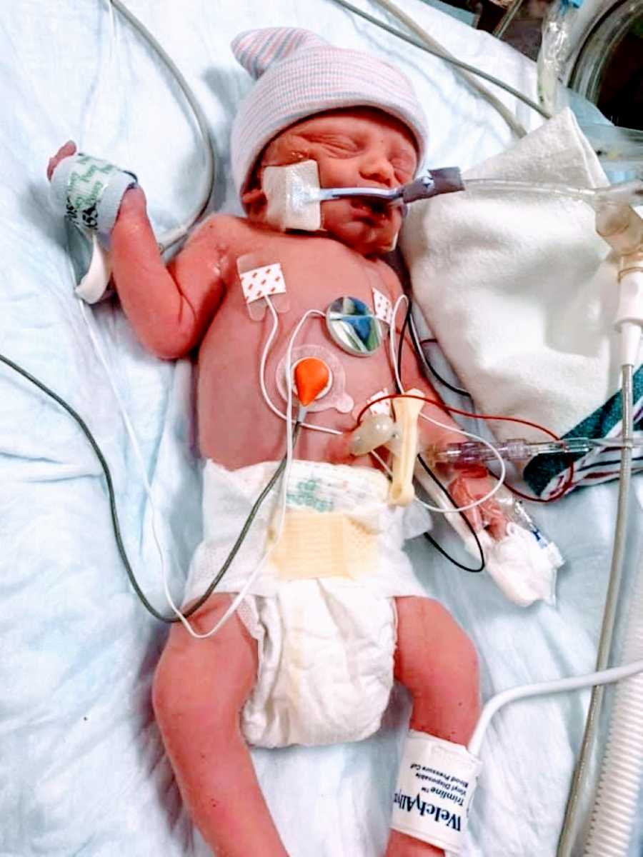 First time mom takes photo of her newborn son attached to a bunch of wires after an emergency C-section