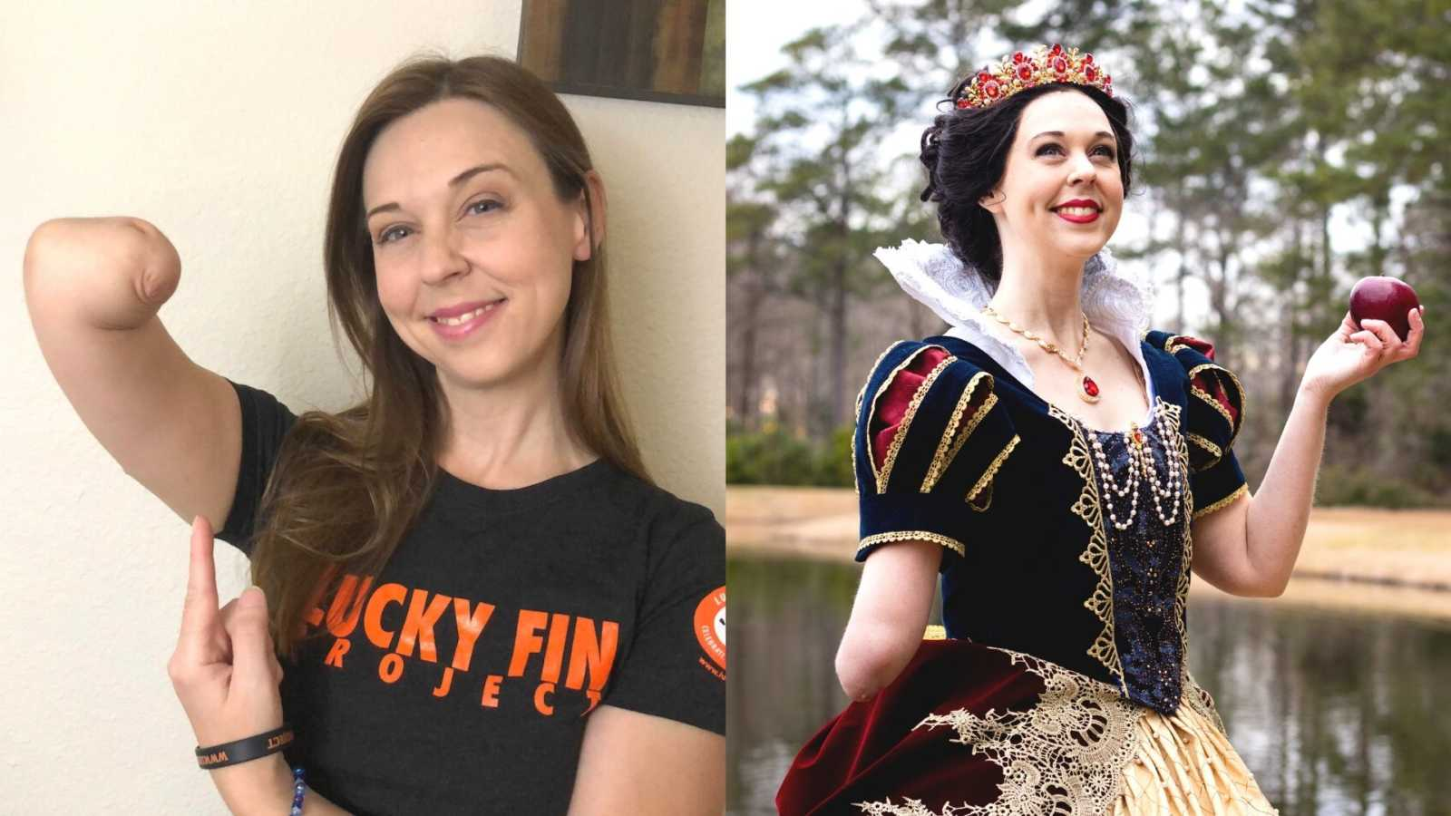 woman with limb difference holding up her arm, woman with limb difference dressed up as Snow White