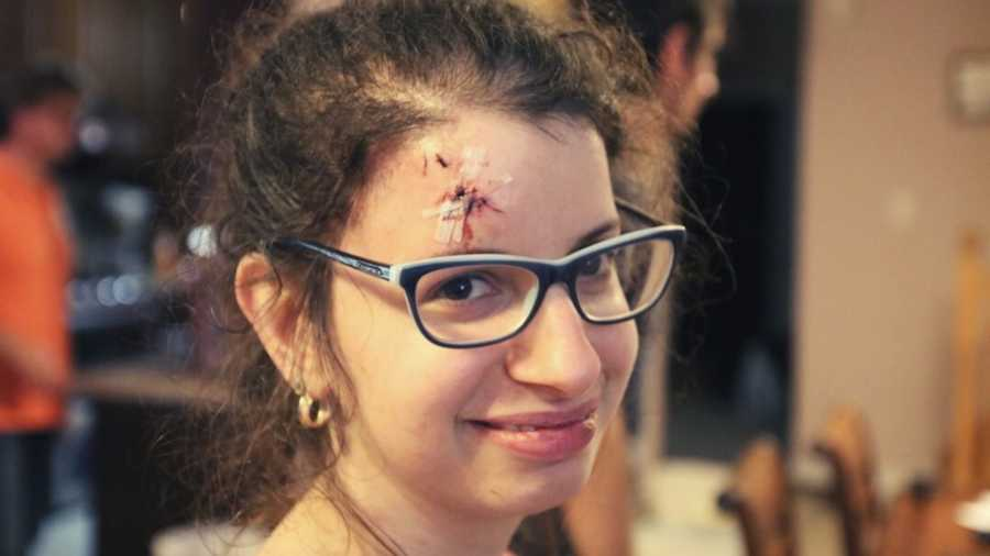 girl with forehead wound