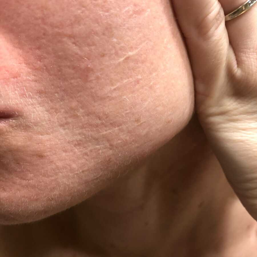 woman showing acne scarring