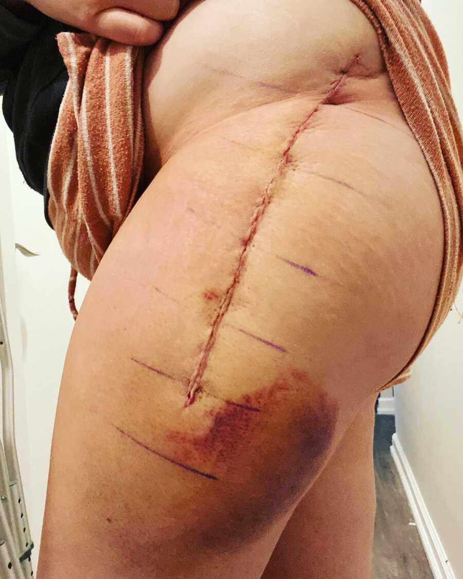scars on woman leg
