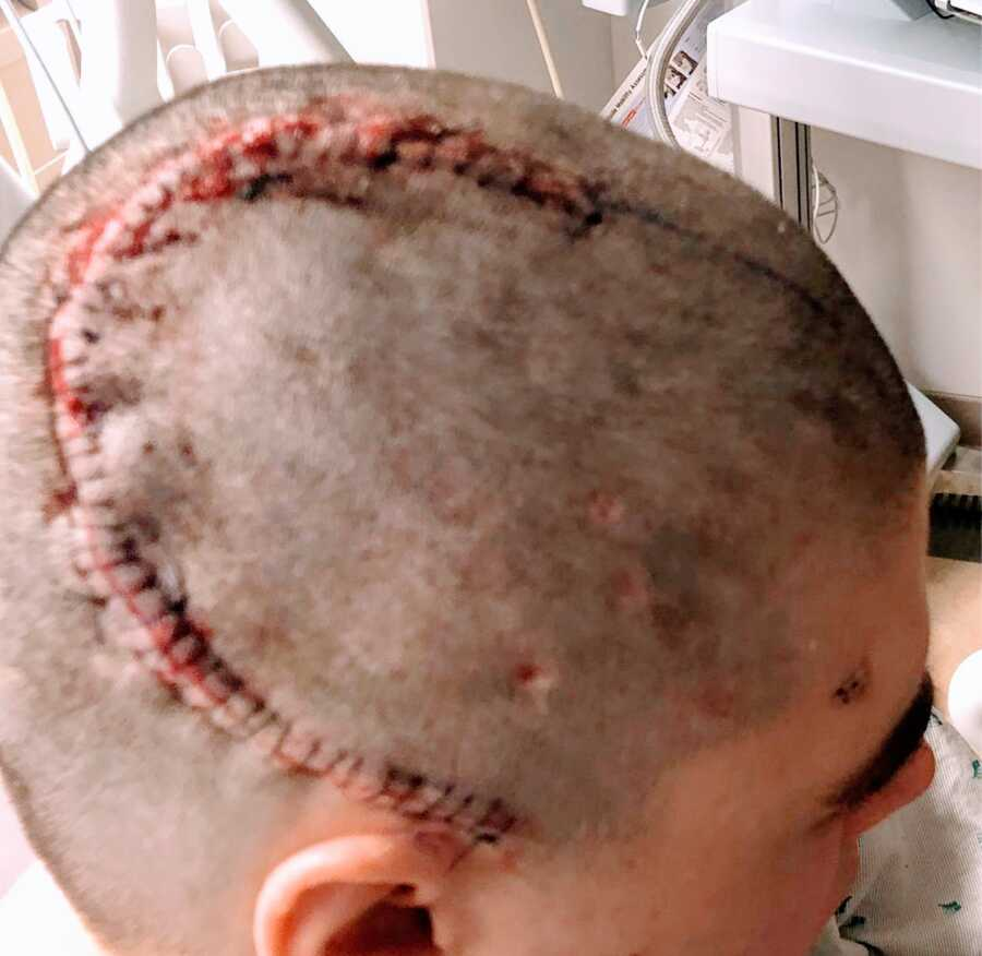 woman with stitches after surgery