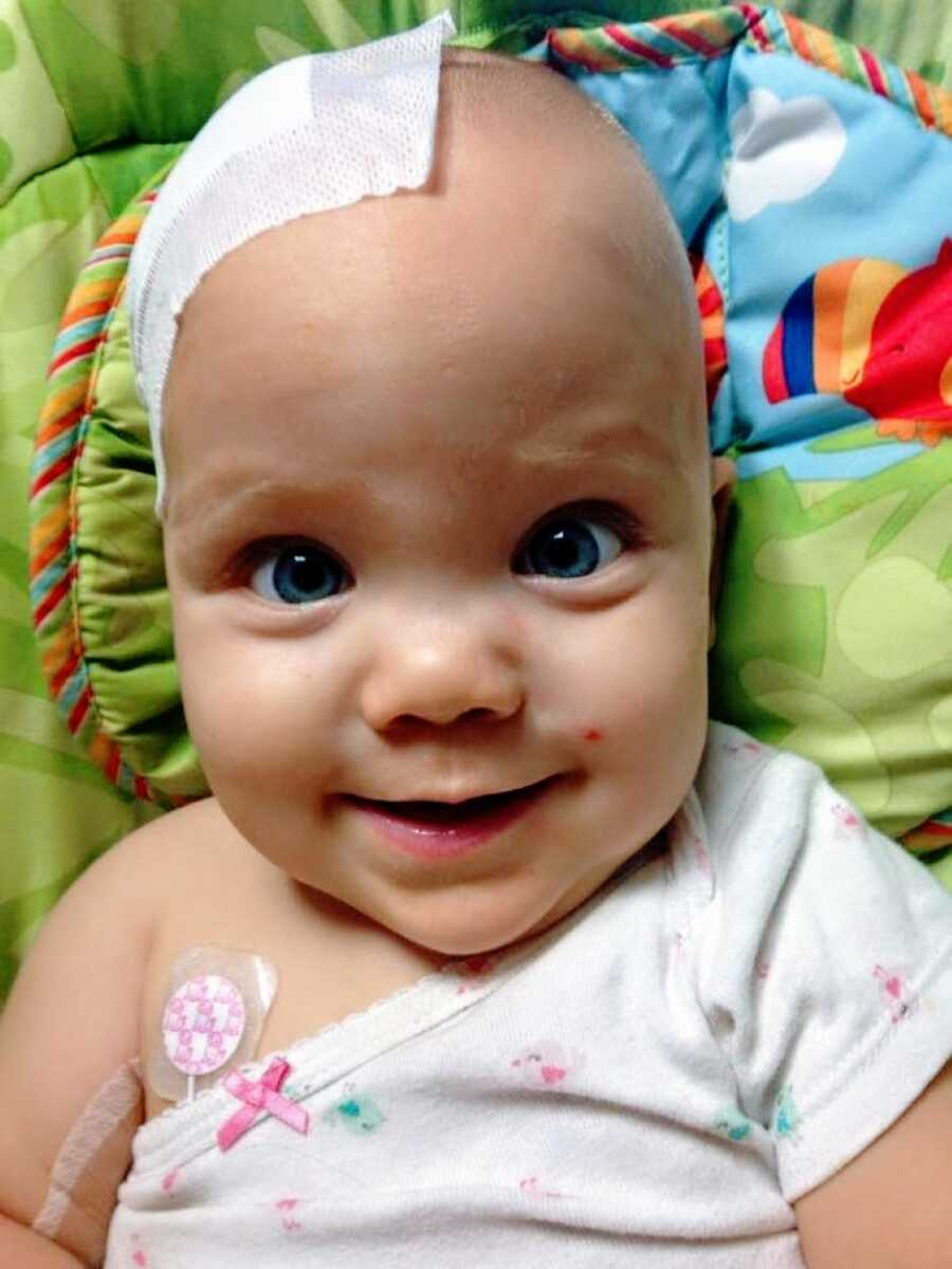 Little girl with hydrocephalus looks into the camera with her big beautiful blue eyes and a bandage on her head