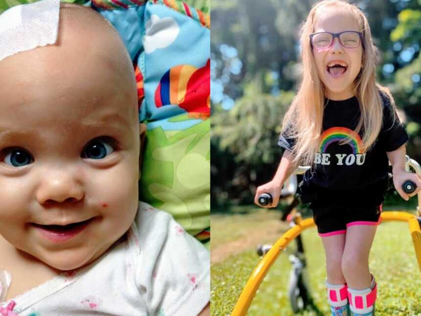 Special needs mom shares photos of daughter with cerebral palsy, one from after brain surgery as a baby and one now as she walks with a walker