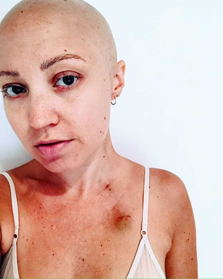 Woman battling aggressive breast cancer takes a selfie, showing off her bald head and bruised chest