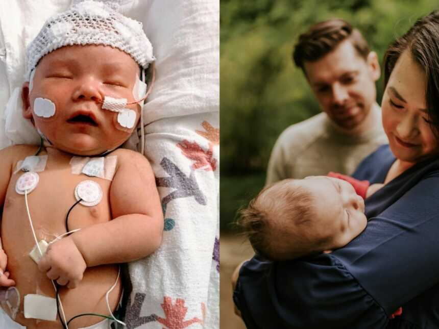 First time parents share photos of their newborn medically complex daughter