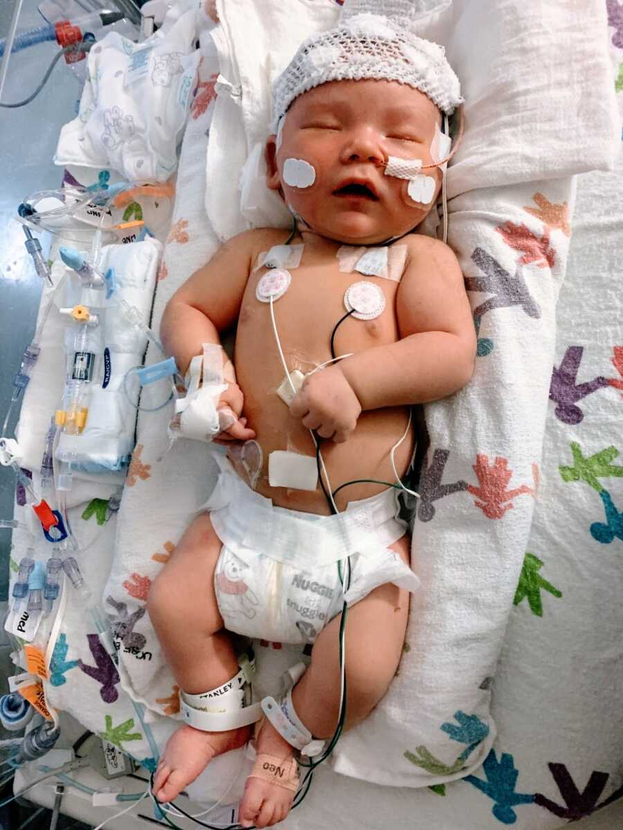 Newborn daughter suffering from unknown seizures sleeps while connected to an EEG in the NICU