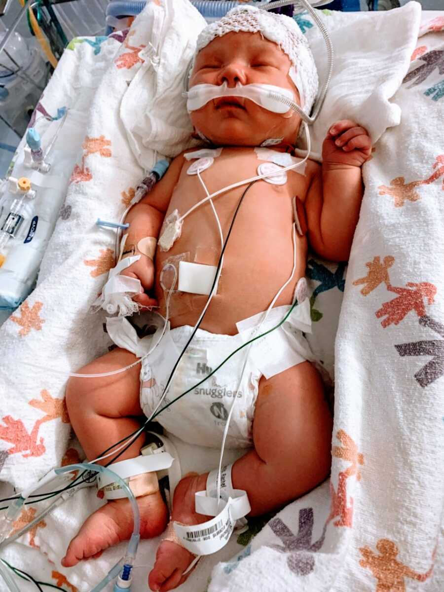 Little girl diagnosed with infantile epileptic encephalopathy sleeps while being monitored in the NICU