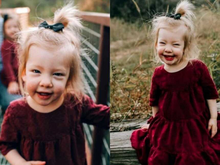 Daughter with Coffin-Siris Syndrome smiles big in a red velvet dress during a family Christmas photoshoot