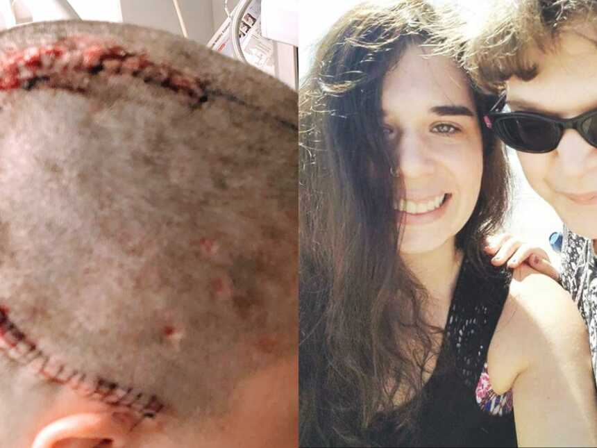 Shaved woman's head after brain surgery and woman with epilepsy with friend